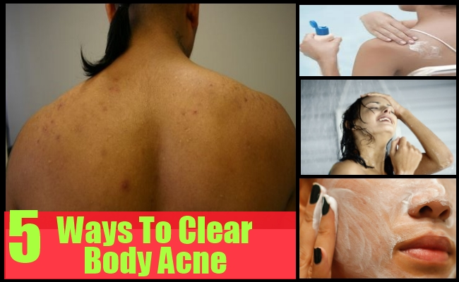 Ways To Clear Body Acne