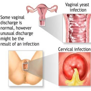Common Symptoms Of Ovarian Cancer