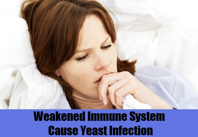 Weakened Immune System Cause Yeast Infection