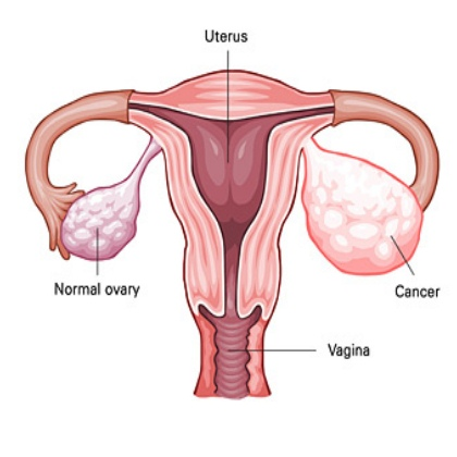 New Promise For Detecting Ovarian Cancers Earlier Cancer Research 101