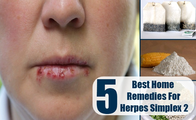 Home remedies for herpes virus