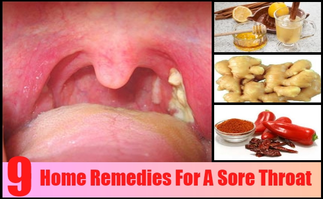 Treatment of sore throat