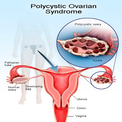 5 common symptoms of ovarian disease | lady care health, Muscles