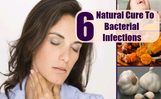 Bacterial Infections Can Be Treated With Natural Cures