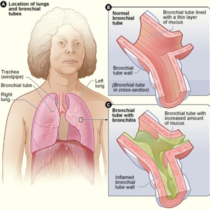 an introduction to the issue of asthma a condition of the bronchial tubes Bronchial asthma is rather widespread modern respiratory disease it is shown in the form of periodic attacks of short wind, strong cough, sometimes capable to develop into an asthma attack.