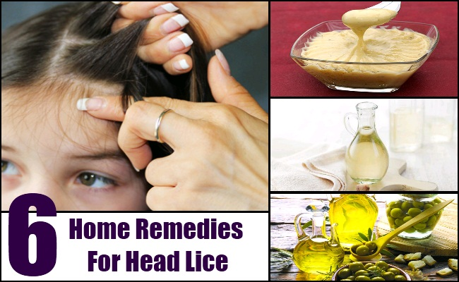 Home Remedies For Head Lice - Natural Treatments And Cures For Head ...