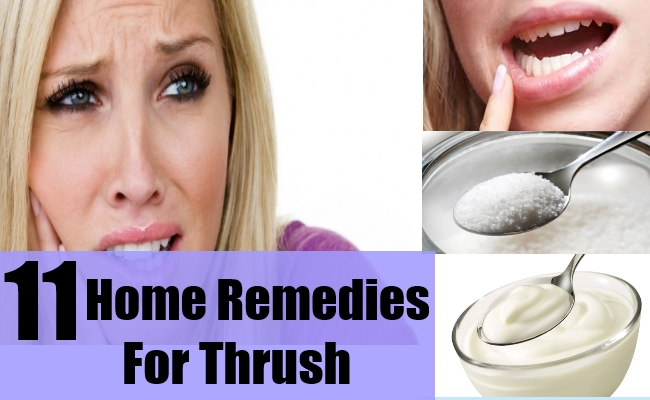 Natural remedies for thrush in the mouth for adults
