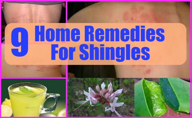 9 Best Shingles Home Remedies Treatments And Cures For