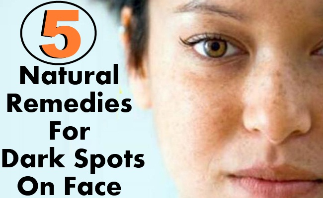 Natural remedies for facial sun spots